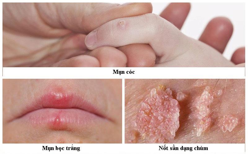 Triệu chứng nhiễm HPV