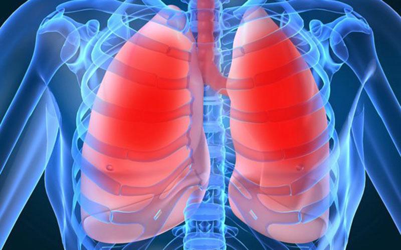 Bệnh lao phổi là gì