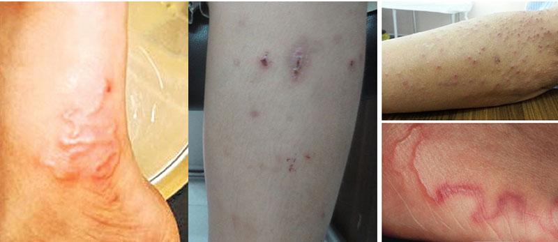 Triệu chứng nhiễm giun sán ở người lớn