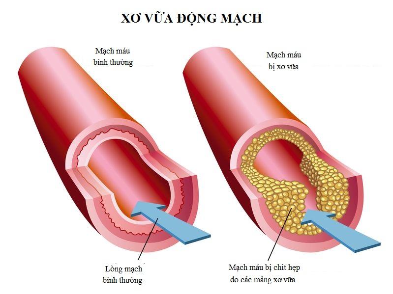 Xơ vữa động mạch là gì?