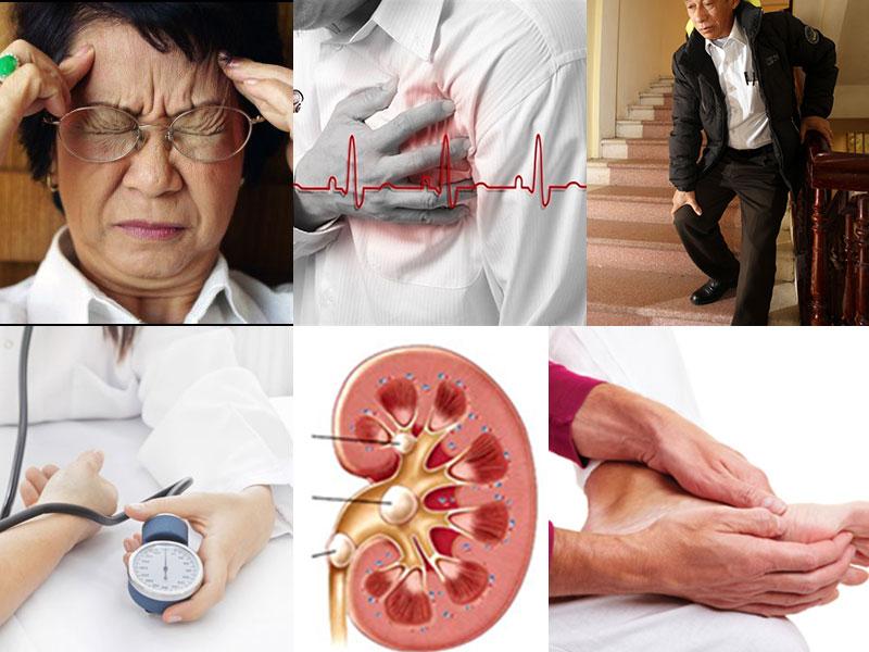 Triệu chứng xơ vữa động mạch