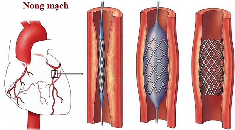 Điều trị bệnh xơ vữa động mạch