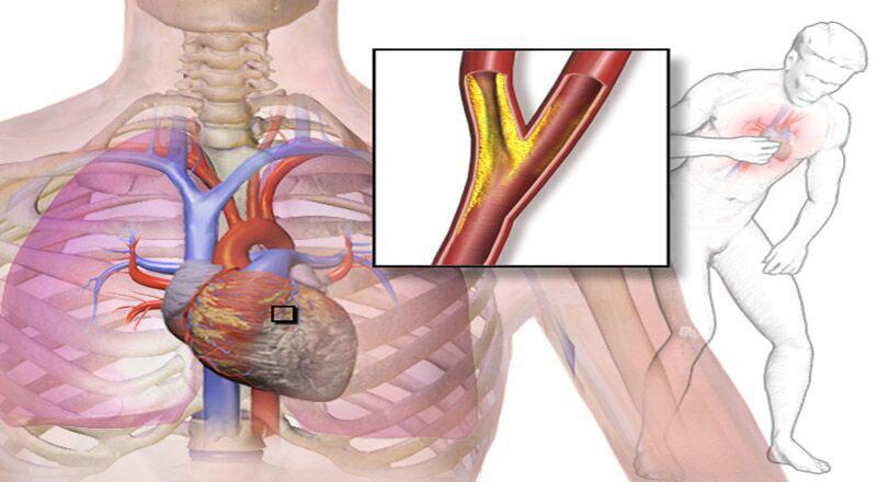 Đau thắt ngực là gì?