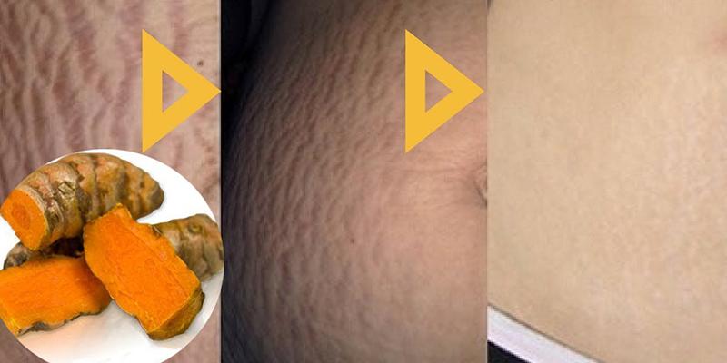 dùng nghệ tươi có thể chữa bệnh rạn da