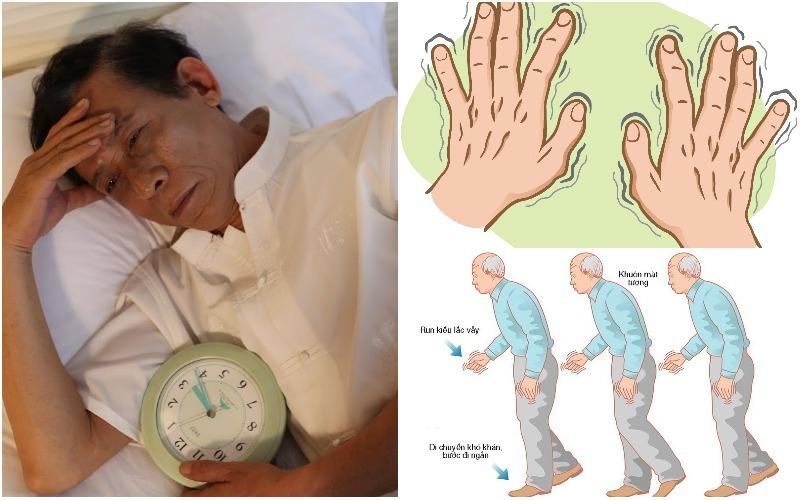 Triệu chứng Parkinson