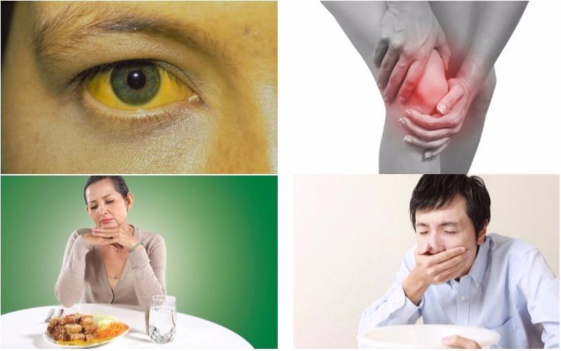 Triệu chứng bệnh viêm gan C