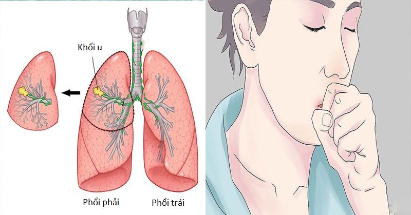 U phổi