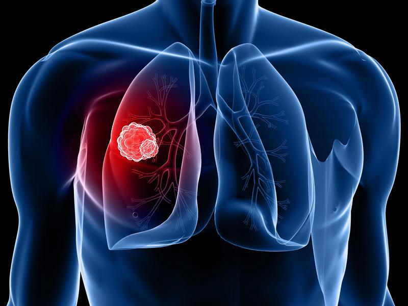 U phổi là gì?