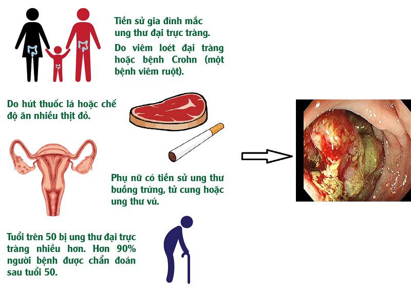 Nguyên nhân mắc bệnh ung thư trực tràng