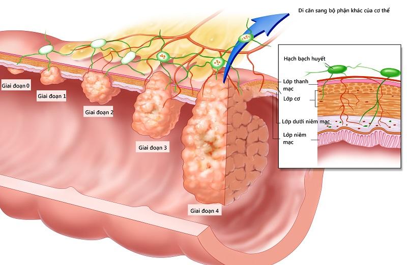Giai đoạn của ung thư trực tràng