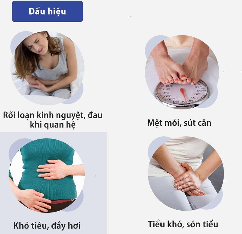 Triệu chứng u nang buồng trứng