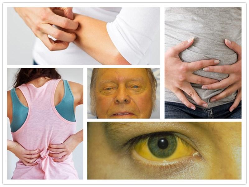 Triệu chứng tăng men gan