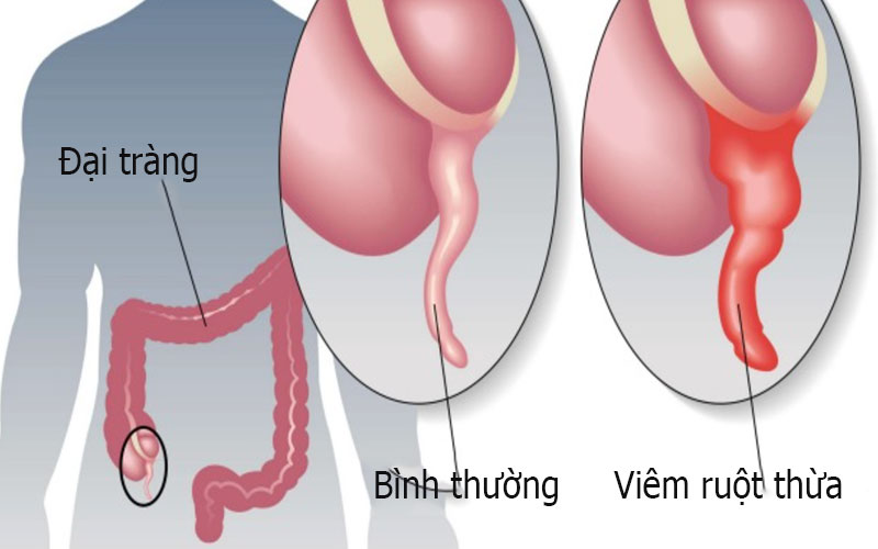 Nguyên nhân viêm ruột thừa