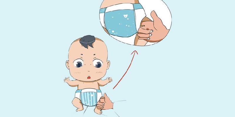 Trẻ sơ sinh dùng tã, chân có bị vòng kiềng khi dùng lâu ngày?