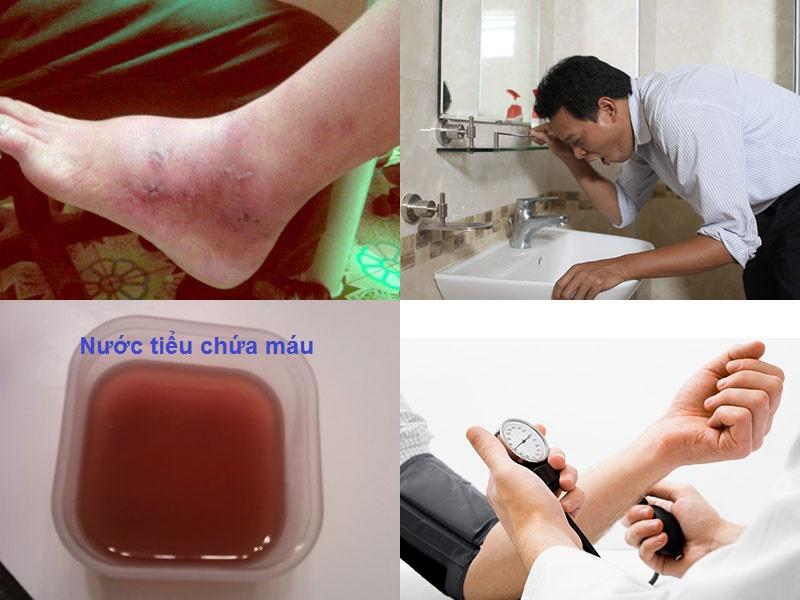 Triệu chứng viêm cầu thận cấp