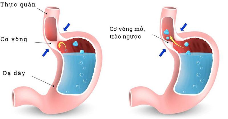 Nguyên nhân trào ngược dạ dày thực quản