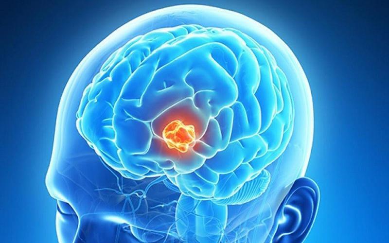 Bệnh u não là gì?