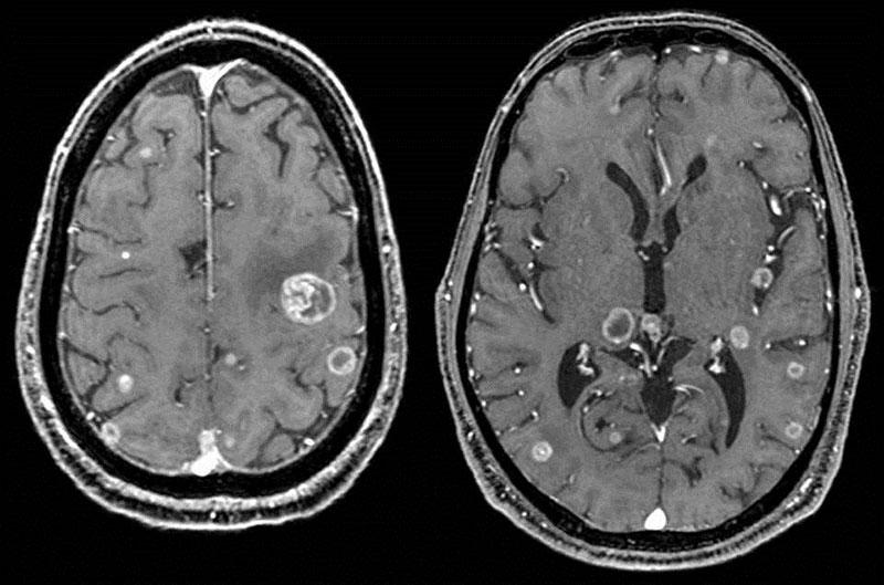 Chẩn đoán khối u não