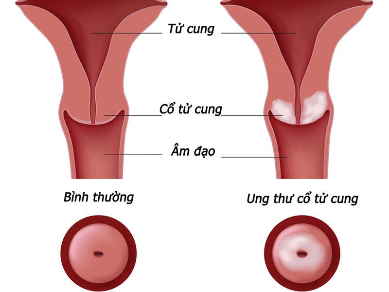 Ung thư cổ tử cung là gì