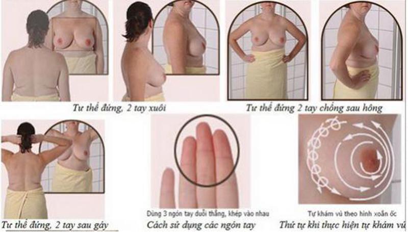 Tự khám ung thư vú
