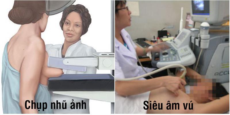 Chẩn đoán ung thư vú