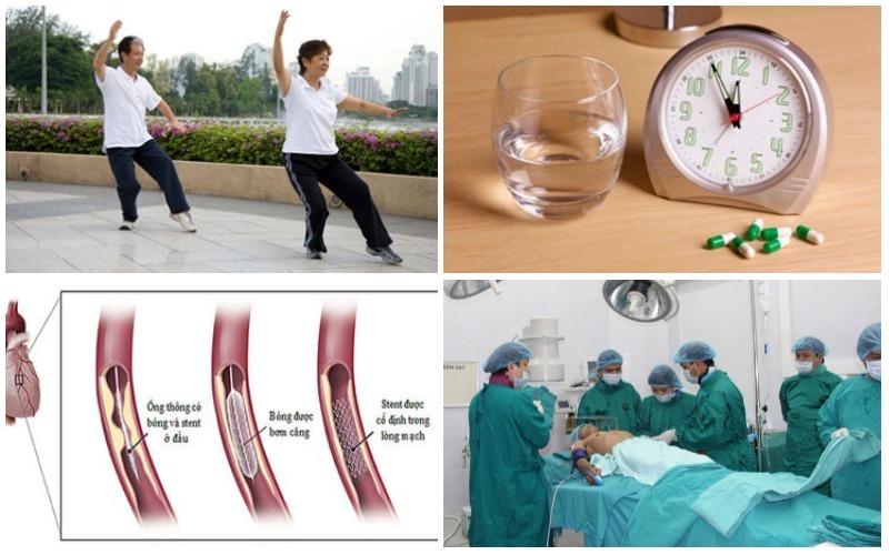 Điều trị bênh mạch vành