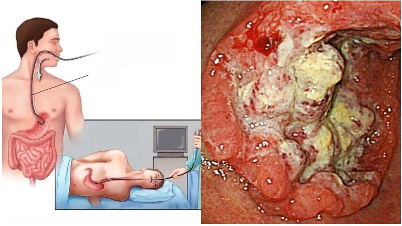 Chẩn đoán ung thư dạ dày