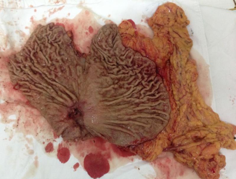 Bệnh phẩm dạ dày sau phẫu thuật cắt bán phần dạ dày