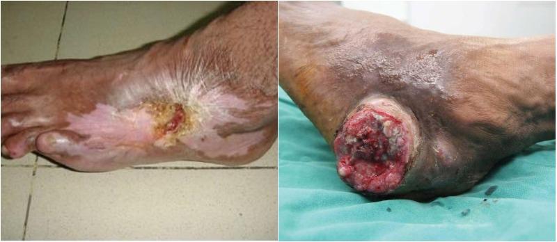 Các yếu tố nguy cơ của ung thư da bao gồm