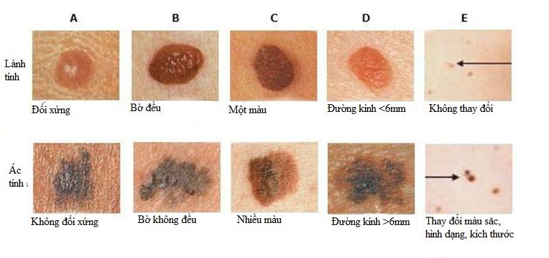 Phân biệt nốt ruồi bình thường và nốt ruồi không đặc hiệu