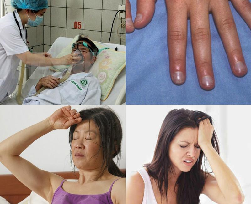 Triệu chứng thường gặp của người bị suy hô hấp