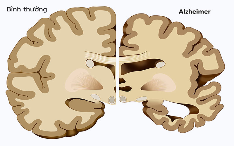 Triệu chứng Alzheimer