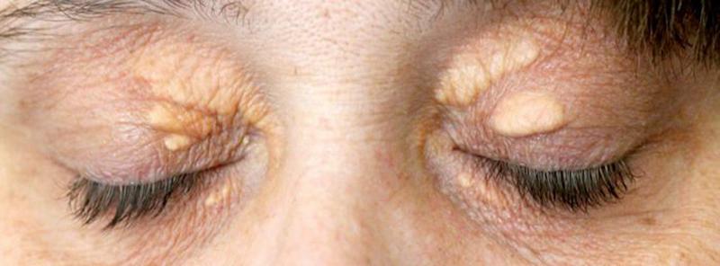 u vàng ở vùng da quanh mắt
