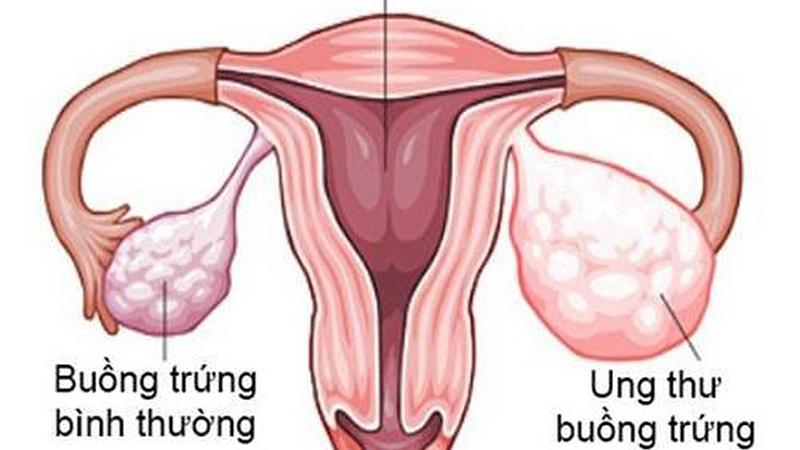 Nhiều phương pháp khác nhau được kết hợp trong điều trị ung thư buồng trứng.