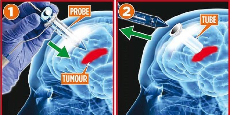 Phương pháp phẫu thuật mới đối với u não có cơ chế khá giống với phẫu thuật nội soi thông thường