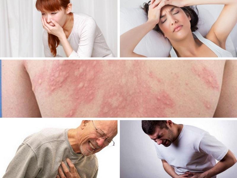 Triệu chứng sốc phản vệ