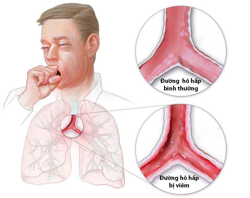 Viêm đường hô hấp dưới là gì?
