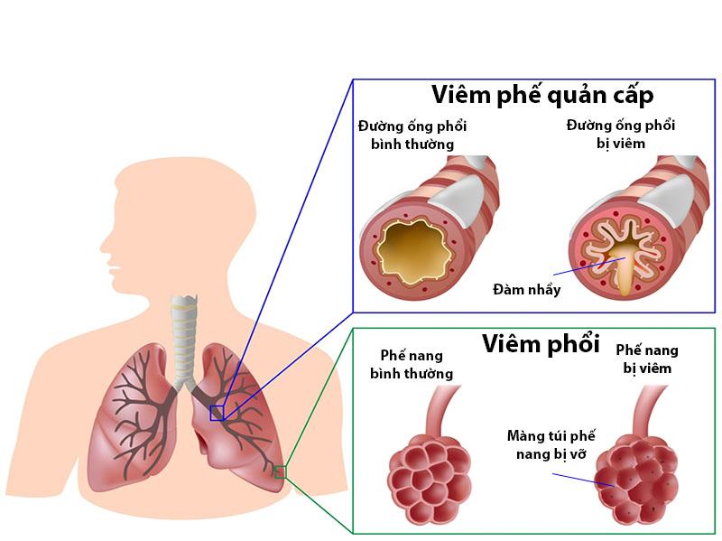 Viêm đường hô hấp dưới thường được chia ra làm hai loại