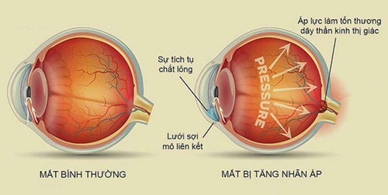 Tăng nhãn áp là tình trạng tăng áp lực trong mắt