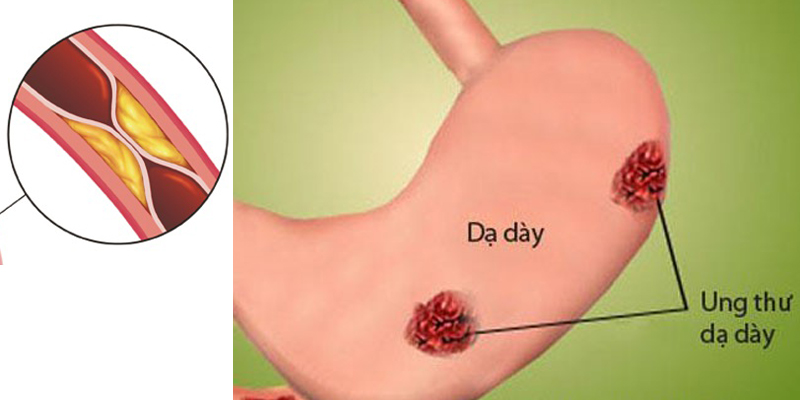 thuyên tắc động mạch chữa ung thư dạ dày