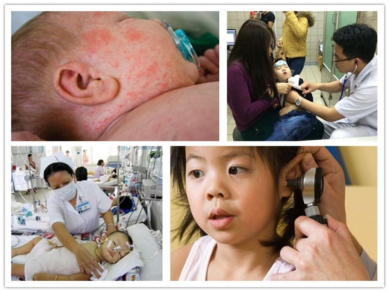 Sốt không phải là bệnh mà chỉ là triệu chứng khi bị mắc một số bệnh do nhiễm trùng