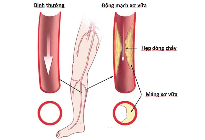 Bệnh động mạch ngoại biên là gì?
