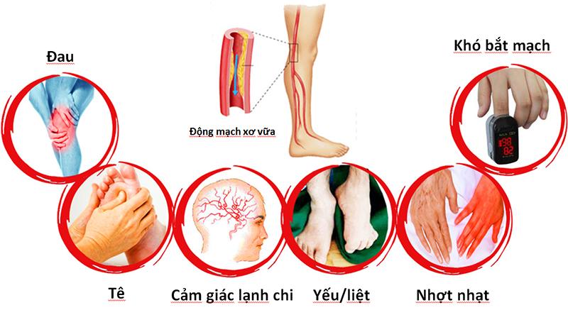 Triệu chứng của bệnh động mạch ngoại biên
