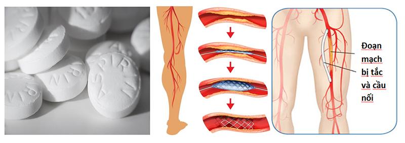 Cách điều trị bệnh động mạch ngoại biên