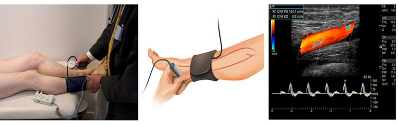 Phòng ngừa động mạch ngoại biên