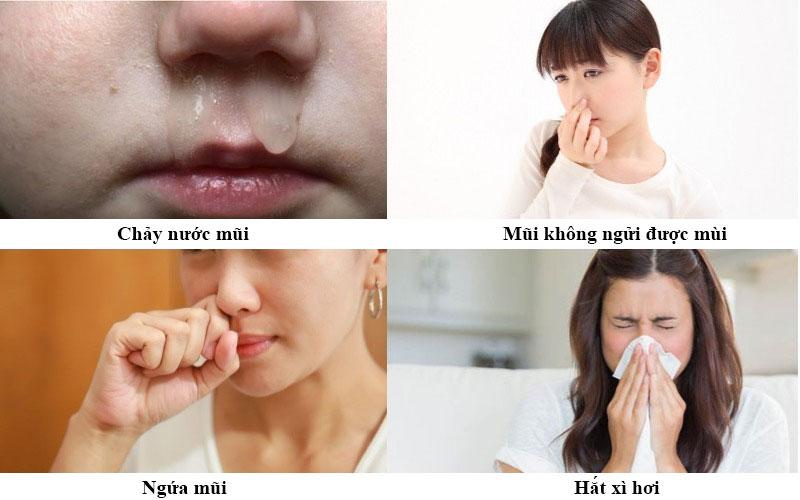 Triệu chứng của bệnh viêm mũi