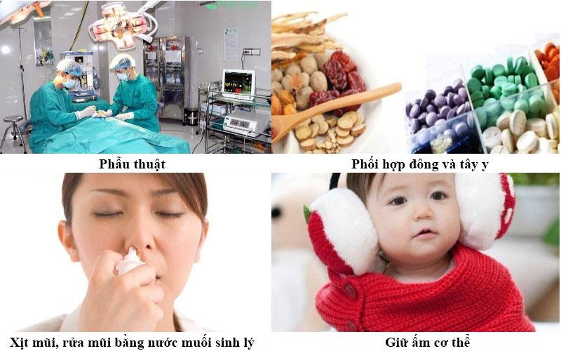 Điều trị viêm mũi