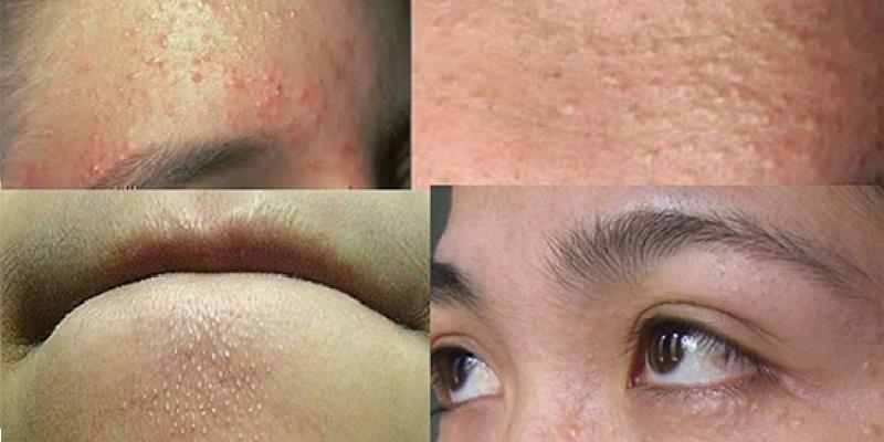 Việc xông hơi mặt không đúng cách có thể dẫn đến rất nhiều tác hại khôn lường cho da mặt