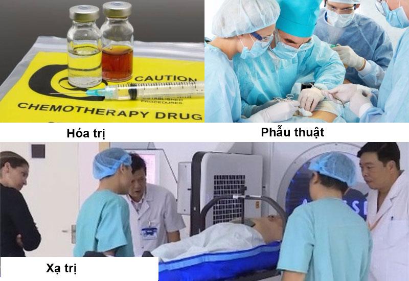 Điều trị ung thư tiền liệt tuyến