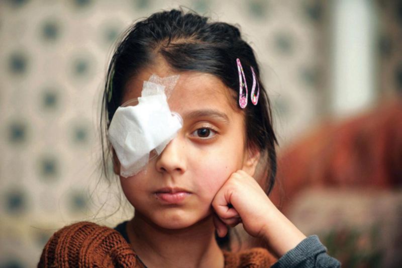 Chấn thương mắt là gì?